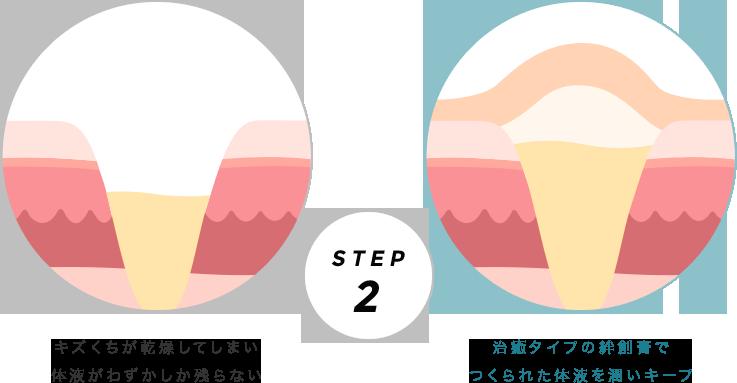 ドライヒーリングとモイストヒーリングの比較 STEP2