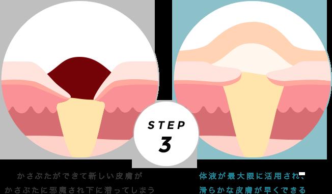 ドライヒーリングとモイストヒーリングの比較 STEP3