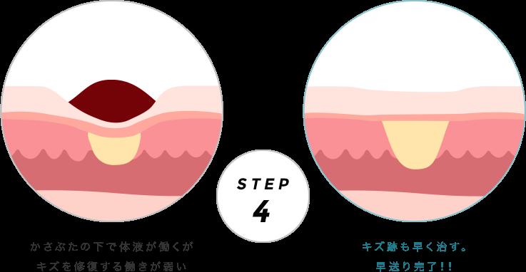 ドライヒーリングとモイストヒーリングの比較 STEP4