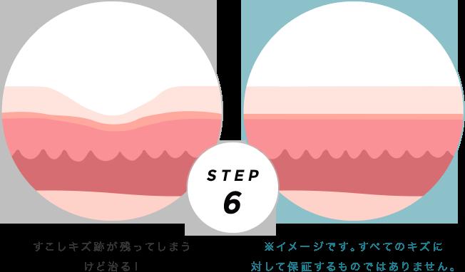 ドライヒーリングとモイストヒーリングの比較 STEP6